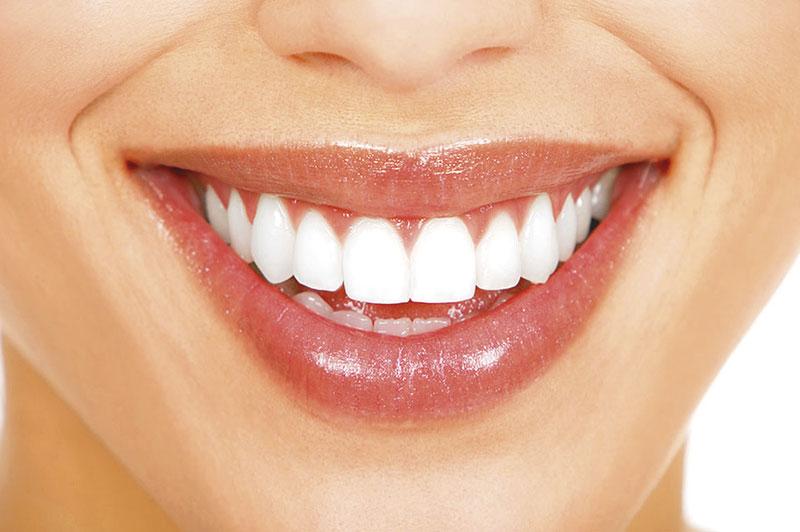 Porcelana Dentes