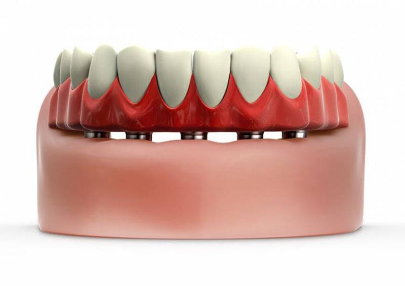 Preço de Enxerto Ósseo Dentário