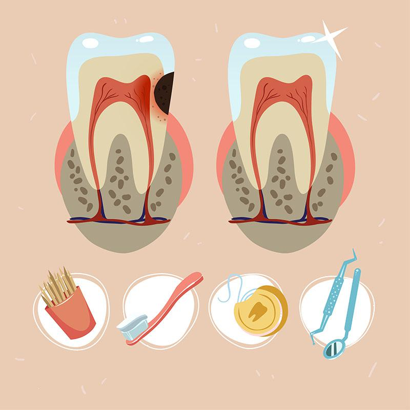 Preço para Fazer Canal no Dente