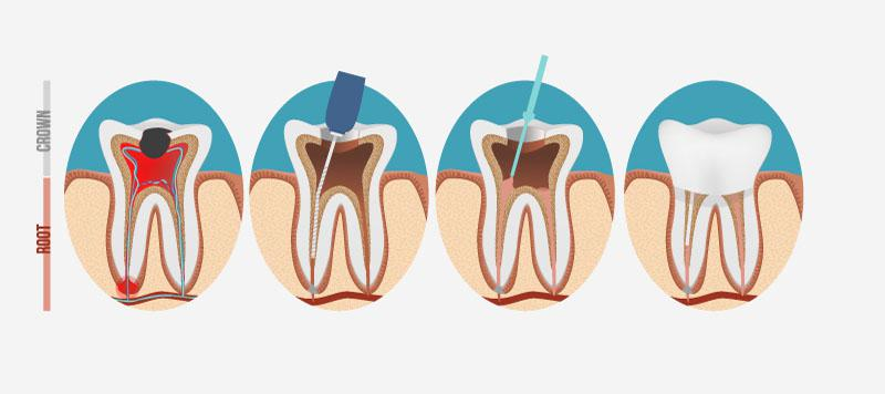 Preços De Canal Dentário