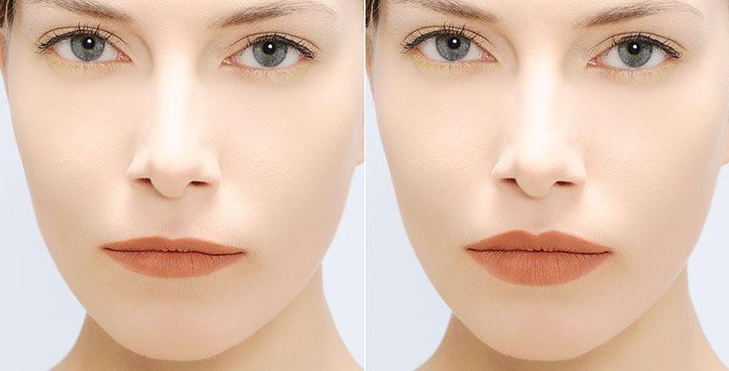 Preenchimento Labial Antes e Depois Fotos