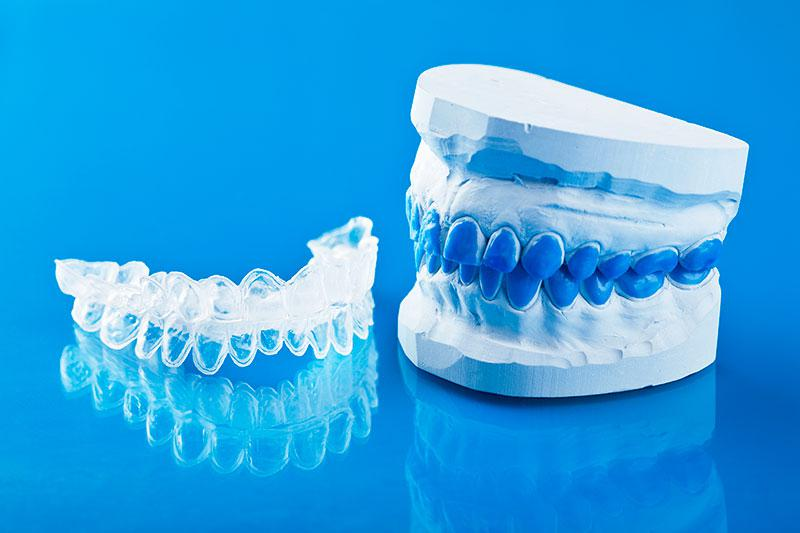 Produtos para Clareamento Dental