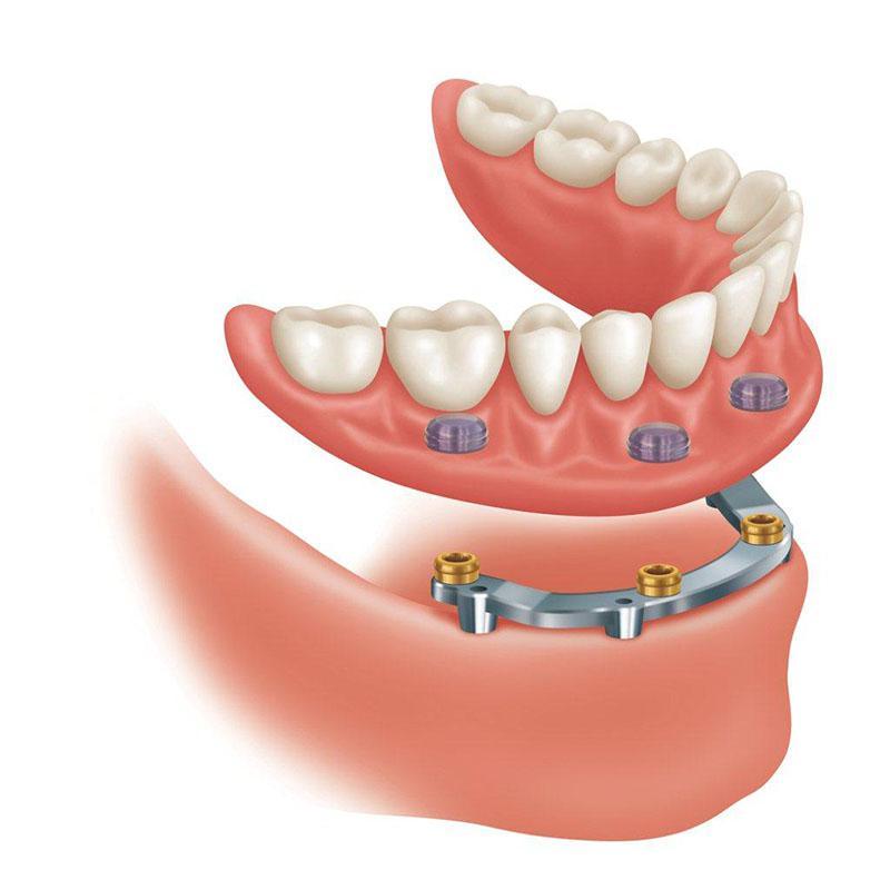 Prótese Dentária Fixa Quanto Custa