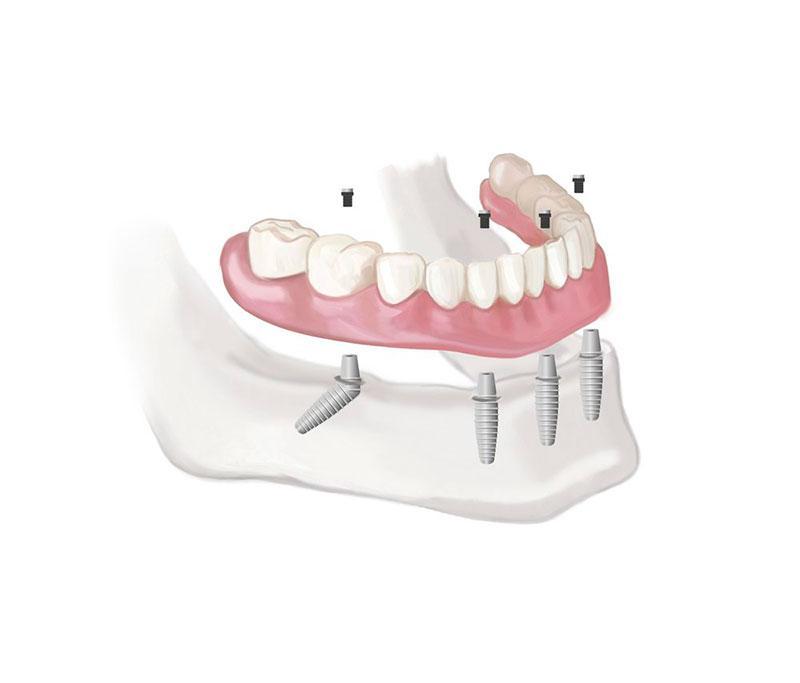 Prótese Dentaria Sobre Implante