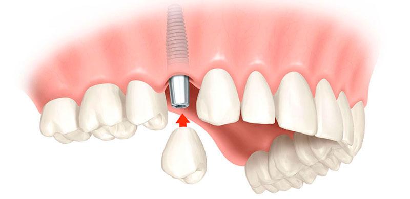 Prótese Sobre Implante Dentário