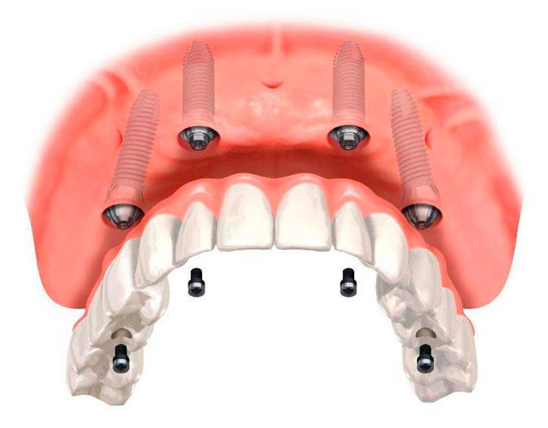 Prótese Sobre Implante Protocolo