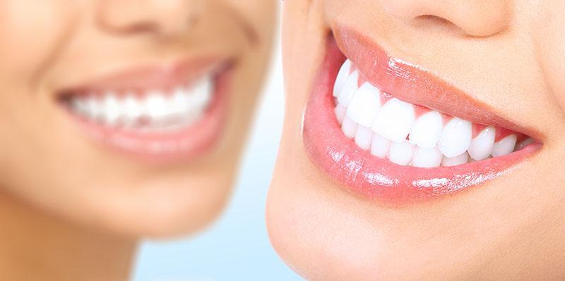 Próteses Dentárias Fixas Preços