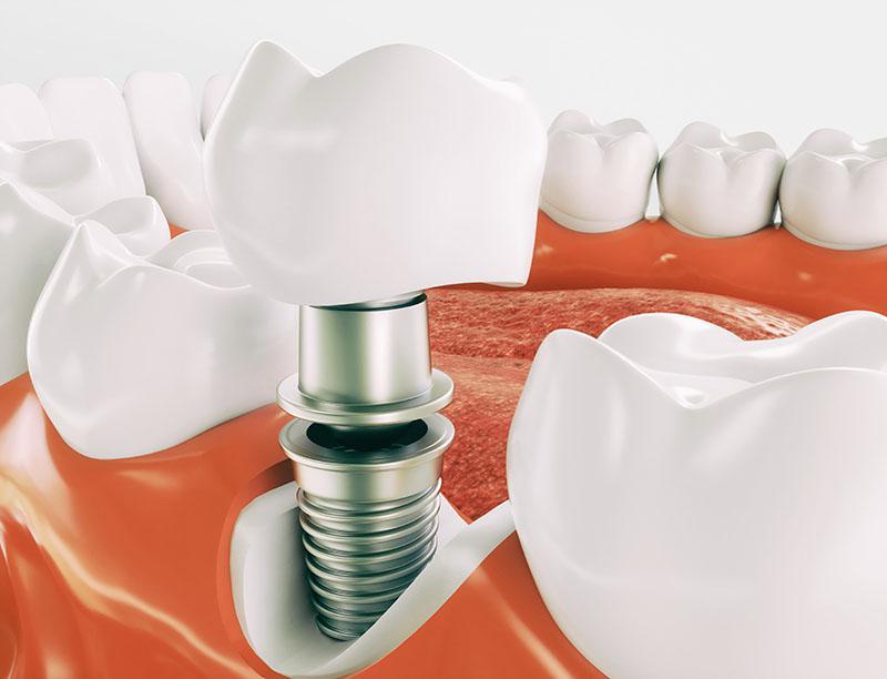 Protocolo Sobre Implante