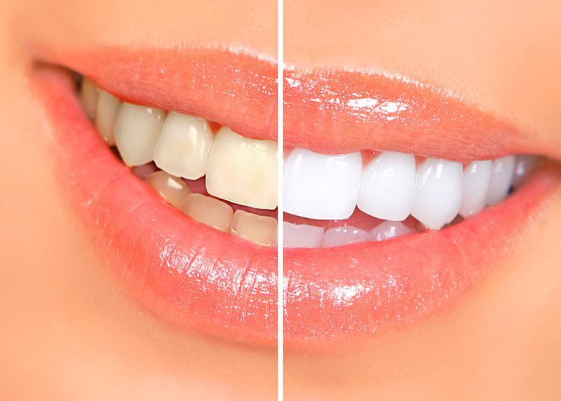 Quais os Tipos de Clareamento Dental