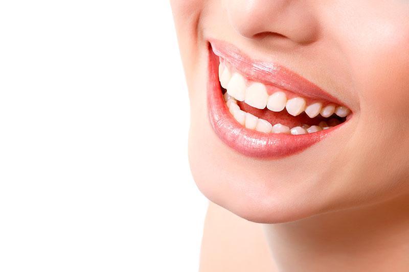 Qual O Melhor Tipo De Clareamento Dental