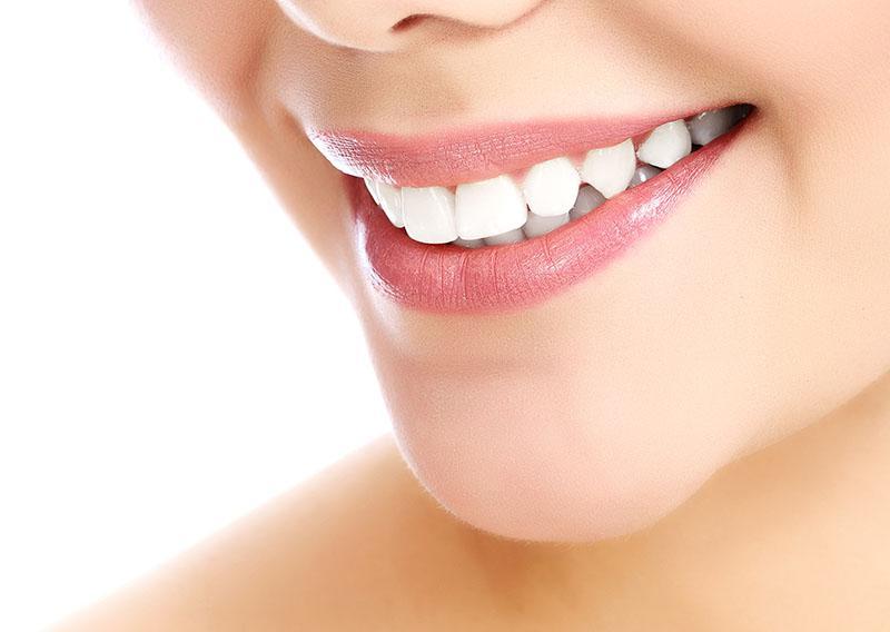 Quanto Custa Clarear Os Dentes