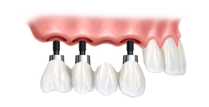 Quanto Custa Um Implante Dentário Com Enxerto Ósseo