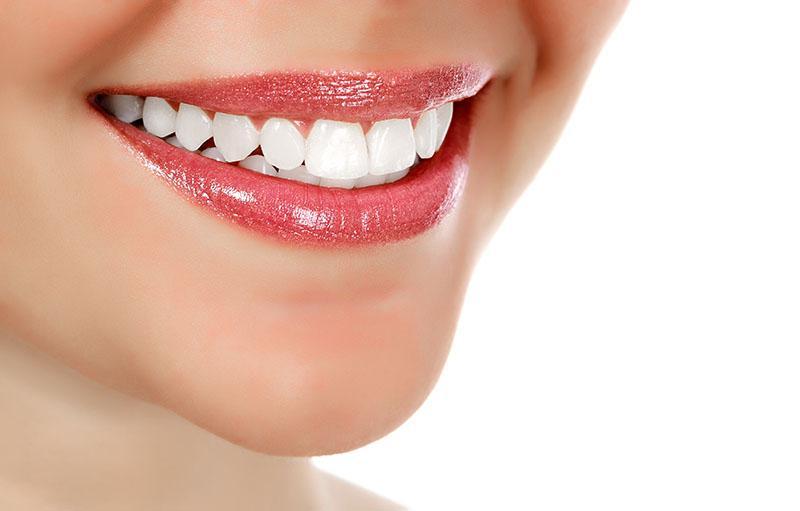 Quanto Custa um Tratamento de Clareamento Dental