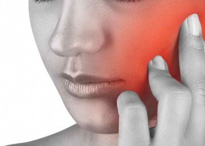 Remédio Nevralgia Dentes