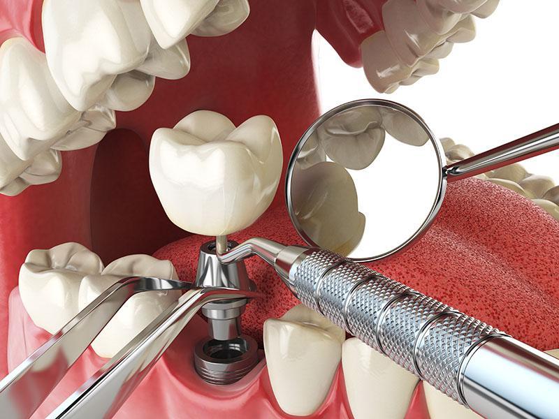 Tipos De Implantes Dentários