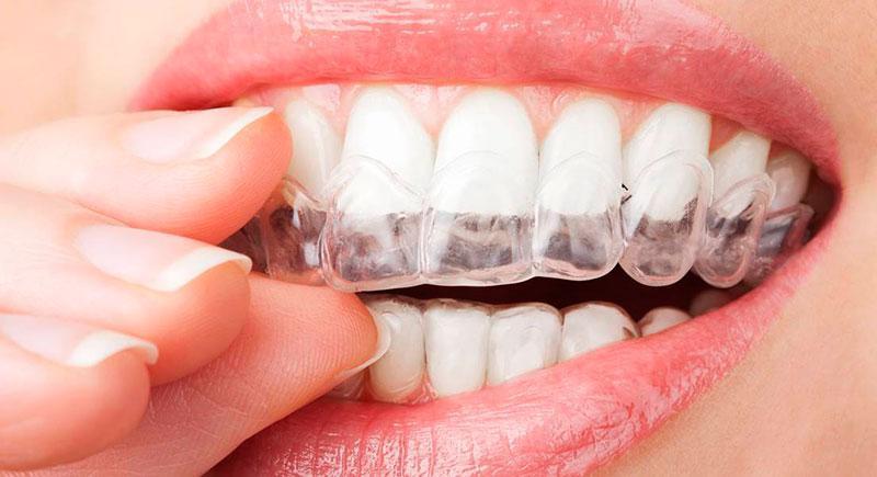 Tratamento Para ATM Odontologia