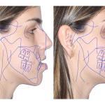 Cirurgia Ortognática Para Apneia Do Sono