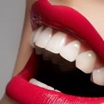 Clareamento Dental Quanto Custa
