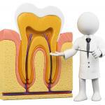Neuralgia Dental