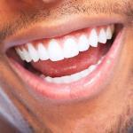 Quanto Custa Pra Fazer Clareamento Nos Dentes