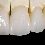 Dente De Porcelana Valor